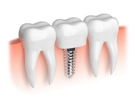 dental implant procedure in Bluff City
